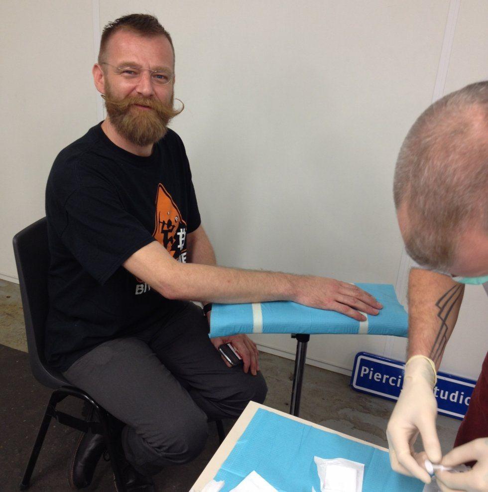 Pose d'un implant pour Martijn Wismeijer